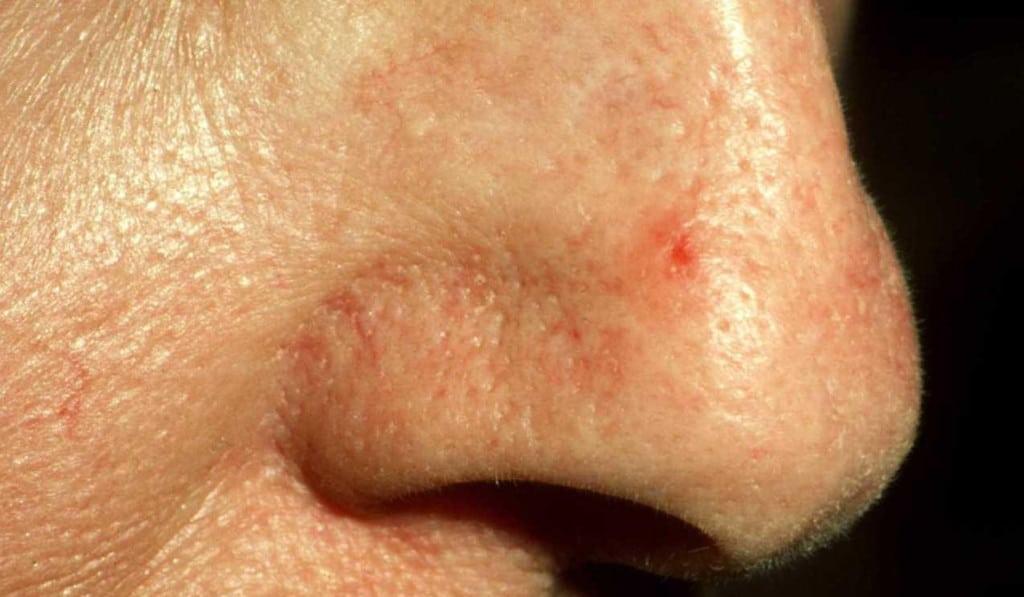 nose spot