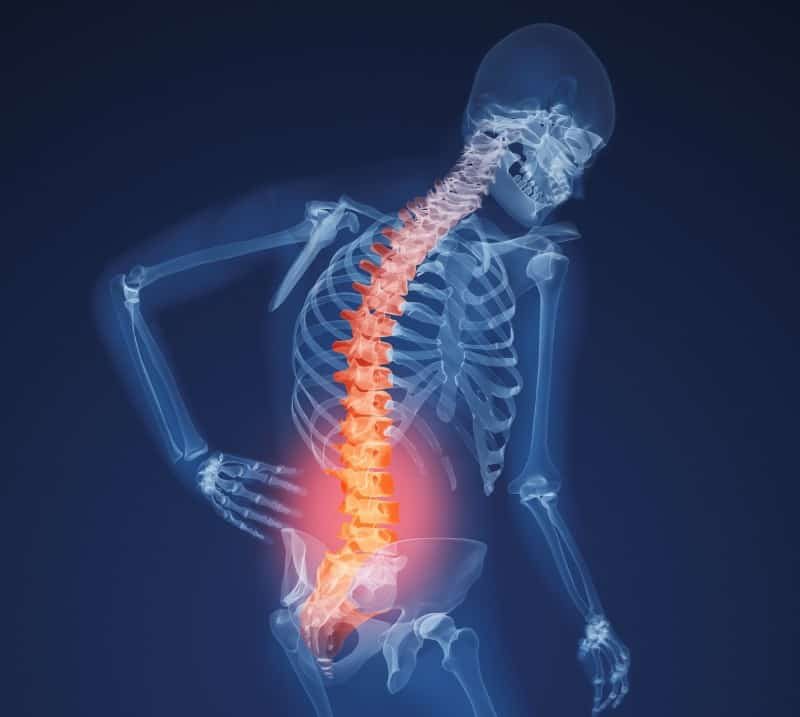 x-ray-lower-back-031611_cropped